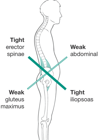 Do Tight Hip Flexors Correlate to Glute Weakness?