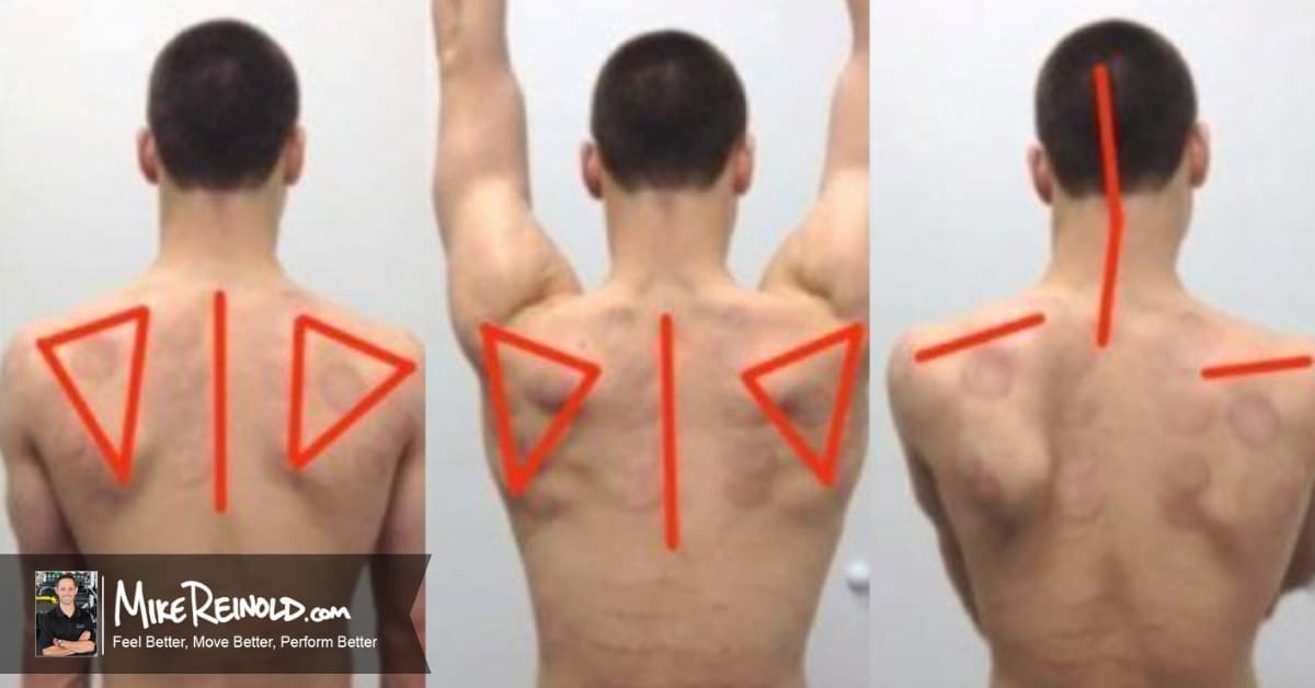 Assessing Overhead Arm Elevation - Video Case Study
