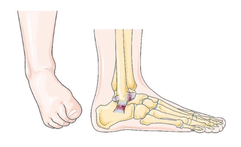 anterior talofibular ligament ankle sprain dorsiflexion