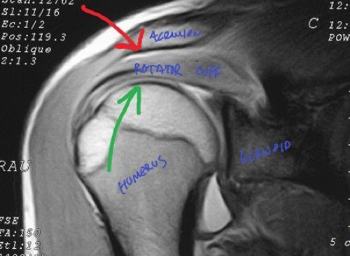 shoulder impingement assessment and treatment