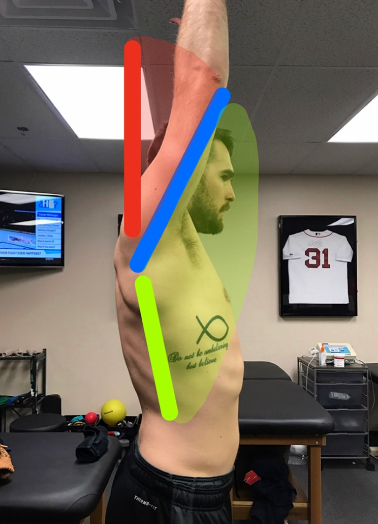 Shoulder overhead elevation mobility