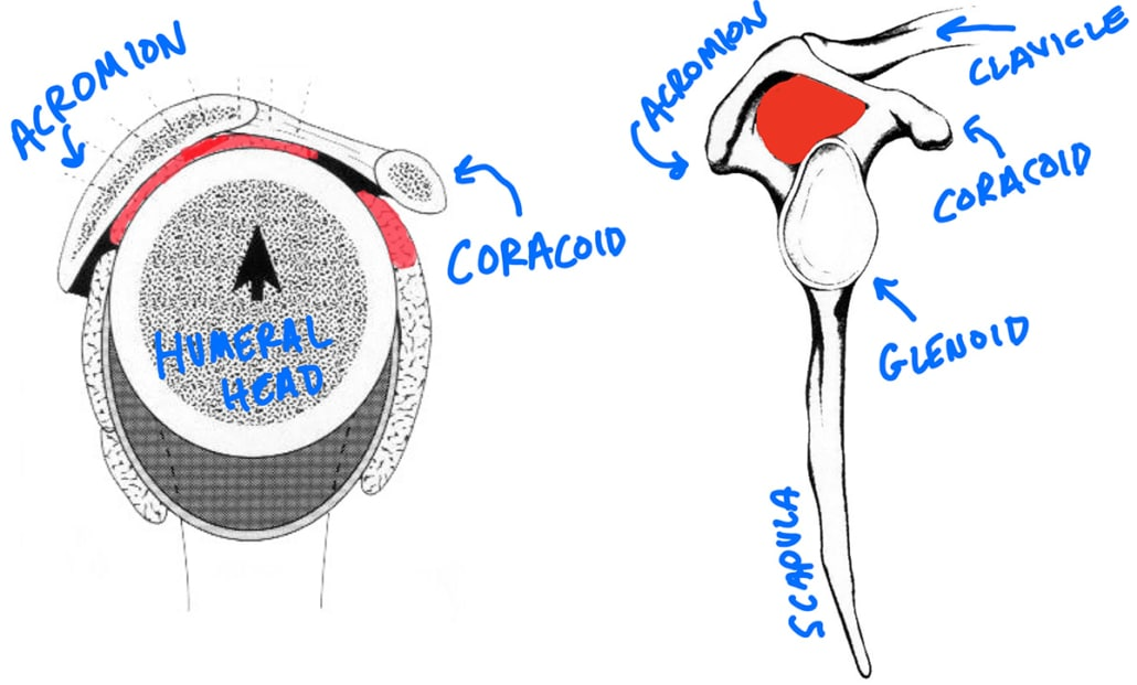 shoulder impingement - subacromial space acromion coracoid coracoacromial arch subcoracoid